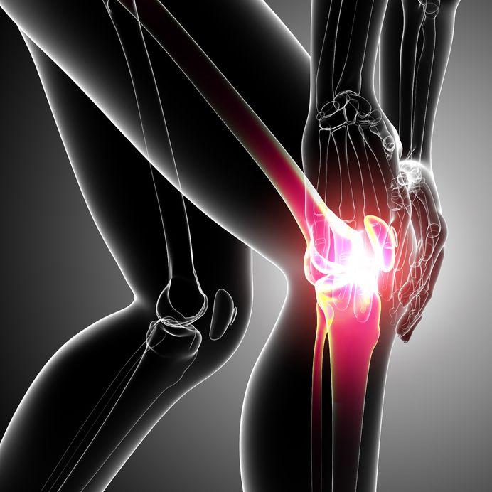 Knochenhautentzündung am Knie / Schienbein