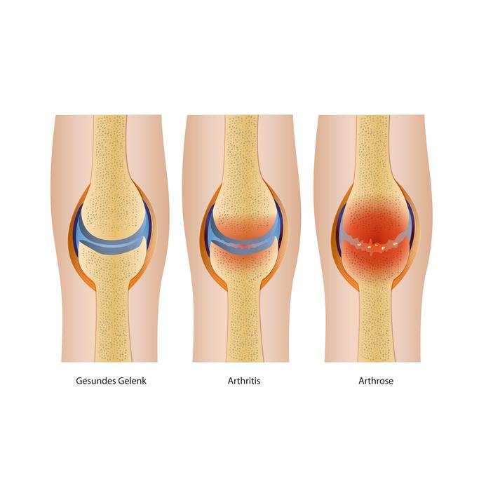 Entzündung im Knie – wodurch wird sie ausgelöst?