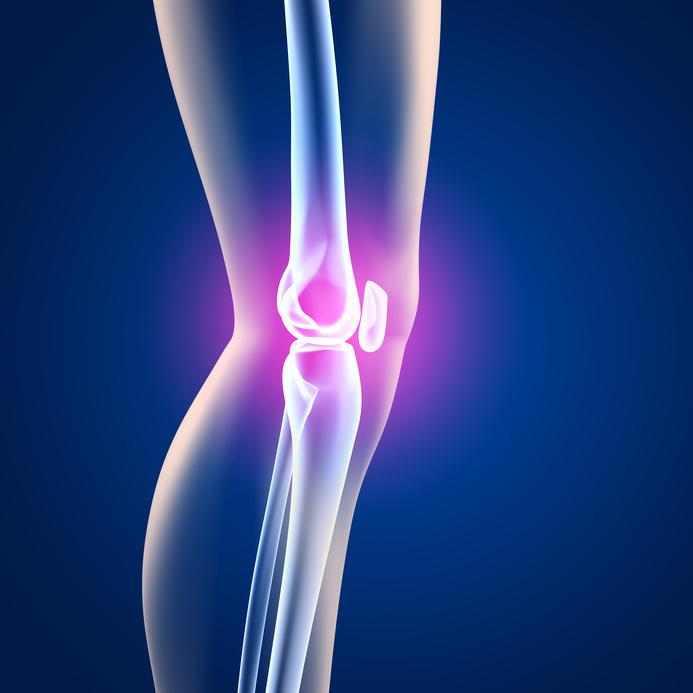 Entzündung im Knie: So vergeht der Schmerz