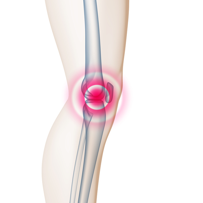Steifes Knie / Kniegelenk – Ursache, Diagnose & Therapie | Med ...