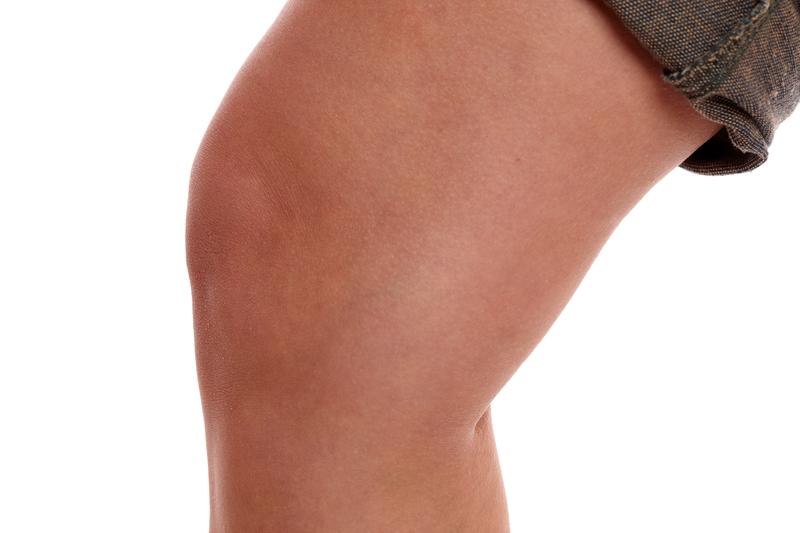 Schleimbeutelentzündung im Knie