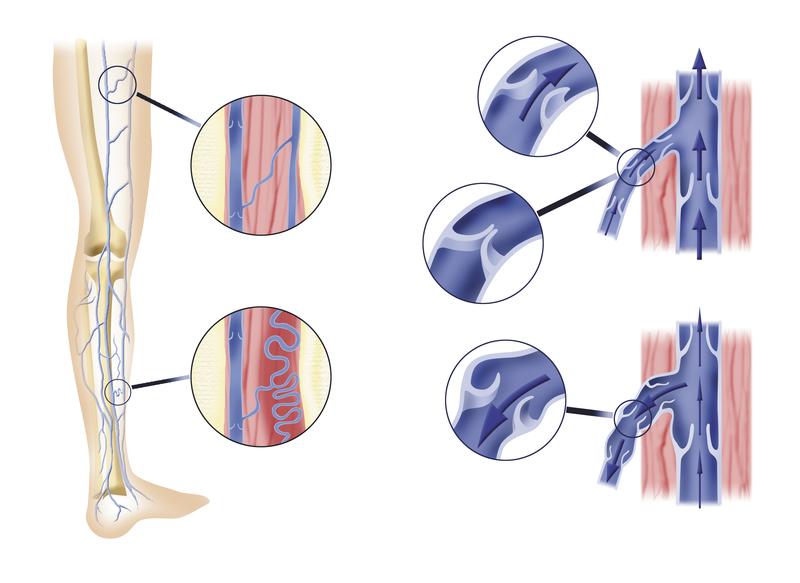 Venen am Bein – Anatomie und Funktion | Med-Library.com