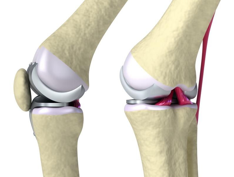 Künstliches Kniegelenk – Haltbarkeit / Lebensdauer & Tipps ... Hinge Joint Knee