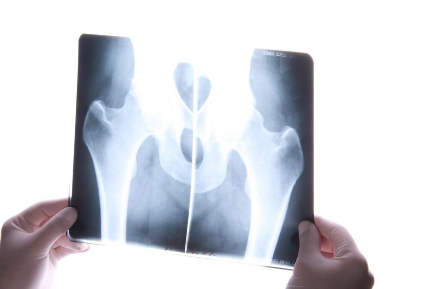 Harndrang: Definition, Ursachen & Therapie (Hilfsmittel) | Med ...