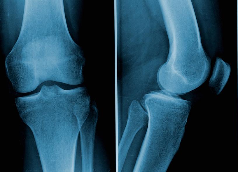 Arthrose im Knie