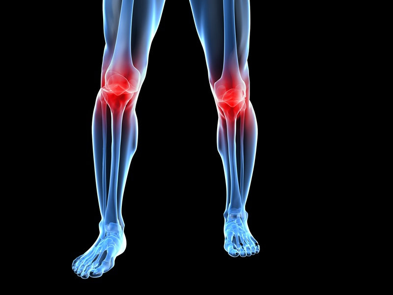 Arthrose im Knie (Gonarthrose) – Symptome, Therapie & Tipps | Infos ...