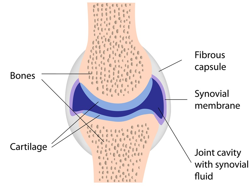 Entzündung der Kniescheibe