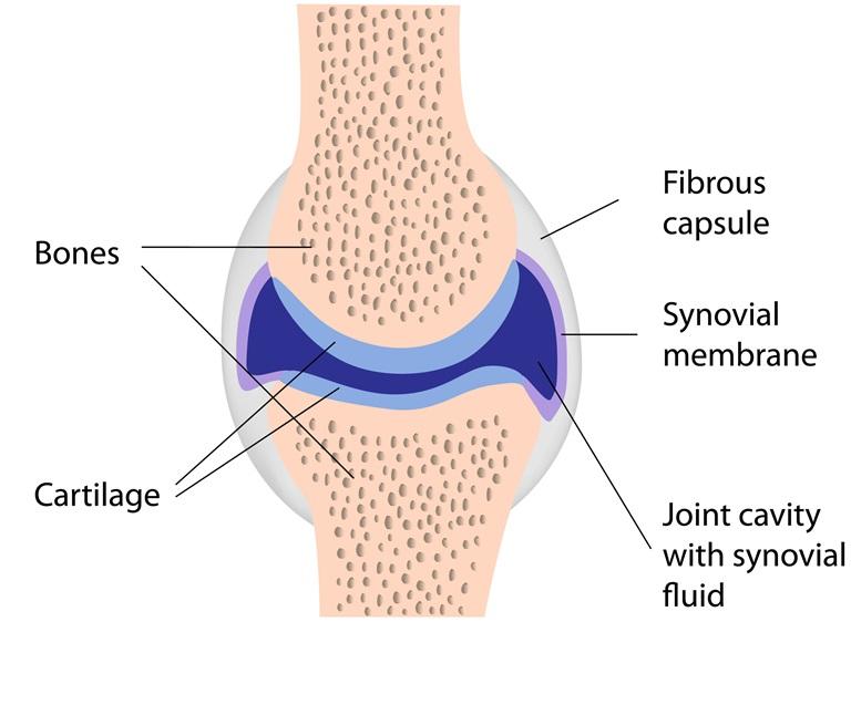 rheuma symptome knie
